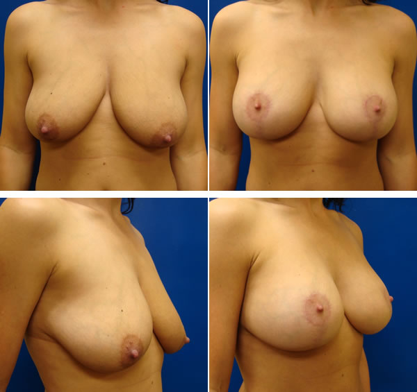 Swift Recovery Breast Augmentation Utah Vincent