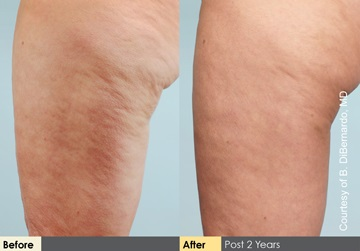 Salt Lake City cellulaze before and after patient photos