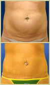 Salt Lake City tummy tuck patient photos