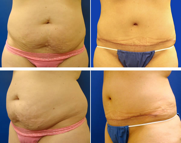 Tummy Tuck Guide